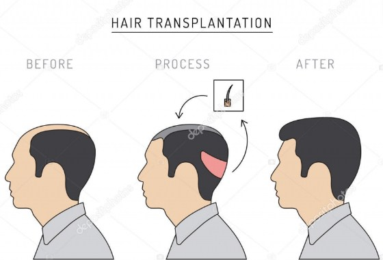 Hair transplant Turkey forum