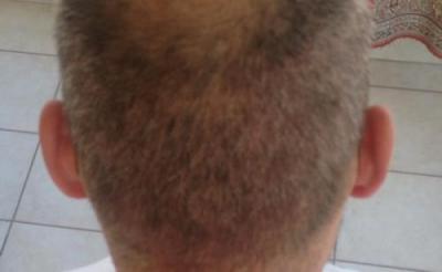 alopecia treatment (1)