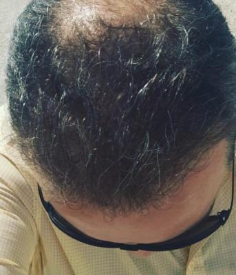 alopecia treatment (5)