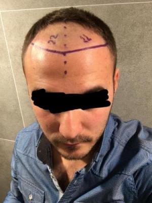 best hair transplant clinic in turkey (1)