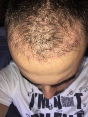 best hair transplant clinic in turkey (10)
