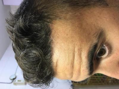 best hair transplant clinic in turkey (12)