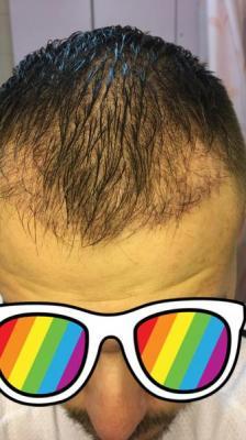 best hair transplant clinic in turkey (13)