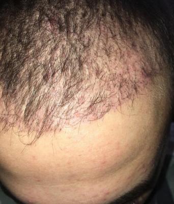 best hair transplant clinic in turkey (15)