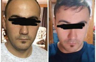 best-hair-transplant-clinic-in-turkey