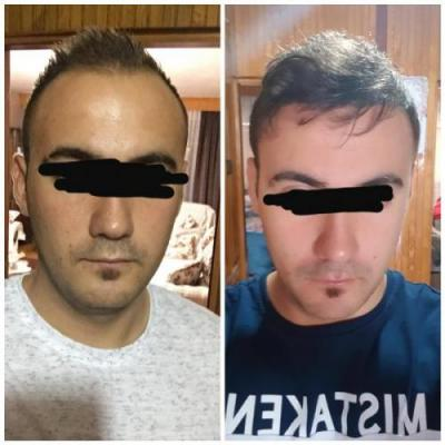 best hair transplant clinic in turkey (17)