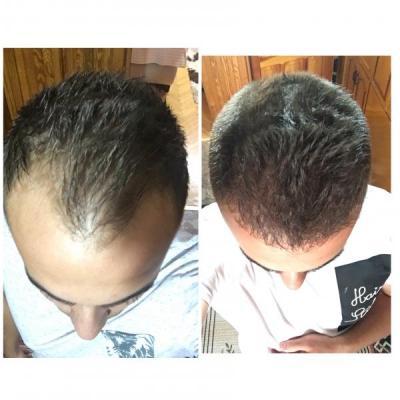 best hair transplant clinic in turkey (18)