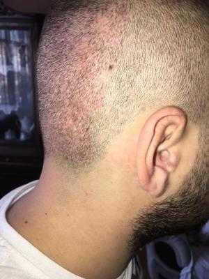 best hair transplant clinic in turkey (19)