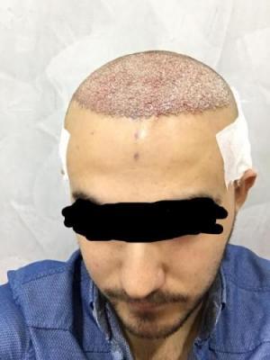 best hair transplant clinic in turkey (2)