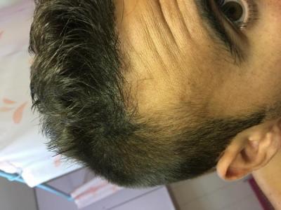 best hair transplant clinic in turkey (6)
