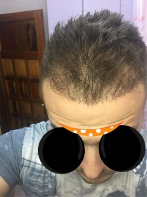 best hair transplant clinic in turkey (8)
