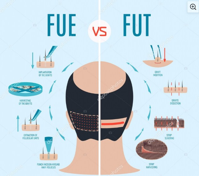fut and fue