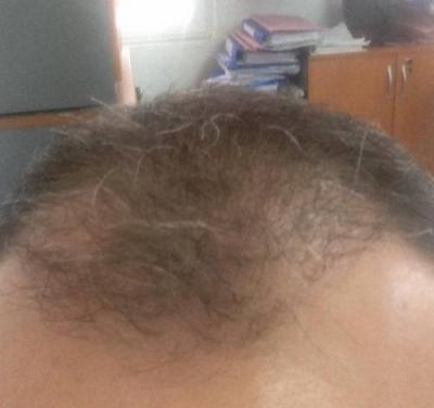 hair fall treatment (3)