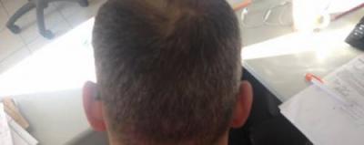 hair fall treatment (4)
