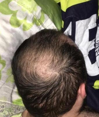 hair implants turkey (14)