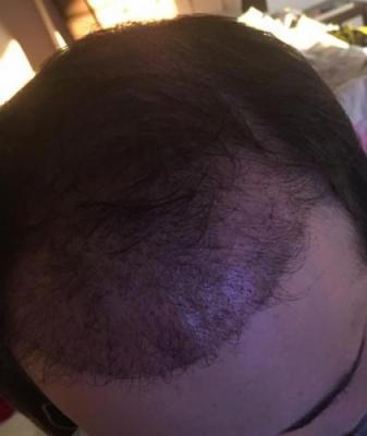 hair implants turkey (15)