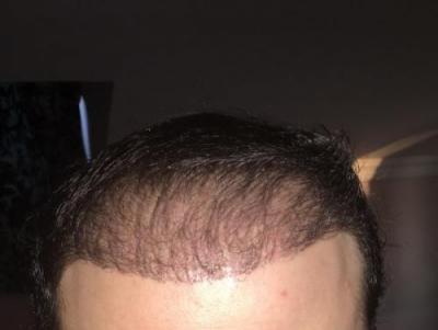 hair implants turkey (19)