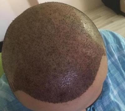 hair implants turkey (21)