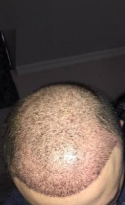 hair implants turkey (5)