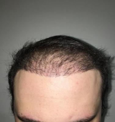 hair implants turkey (6)