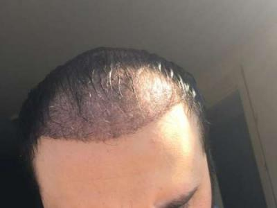 hair implants turkey (7)