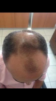 hair plantation (1)