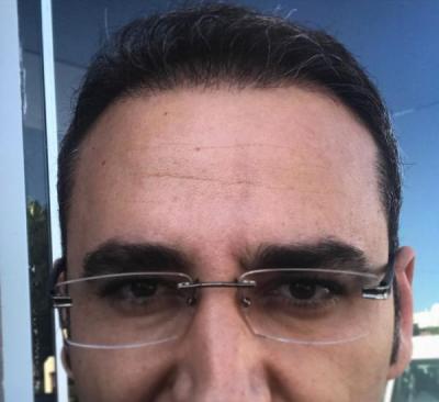 hair plantation (3)