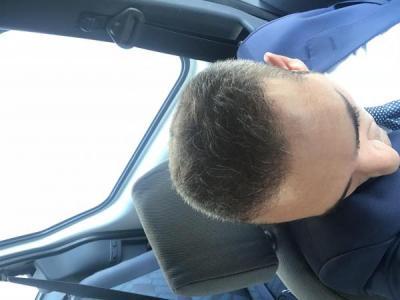 hair plantation (4)