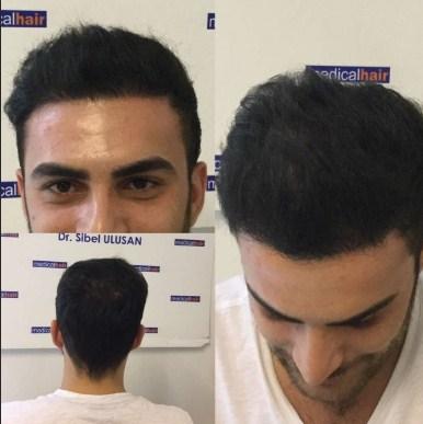 hair plugs (2)