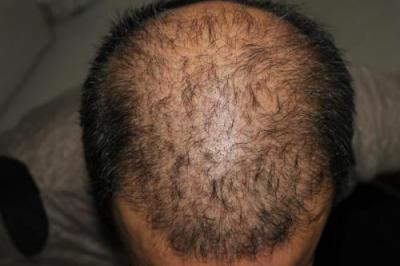 hair plugs (5)