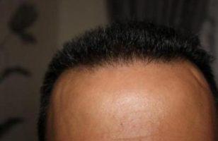 hair plugs (6)