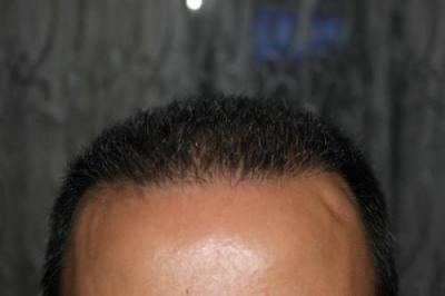 hair regrowth (4)