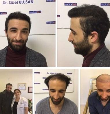 hair restoration (1)