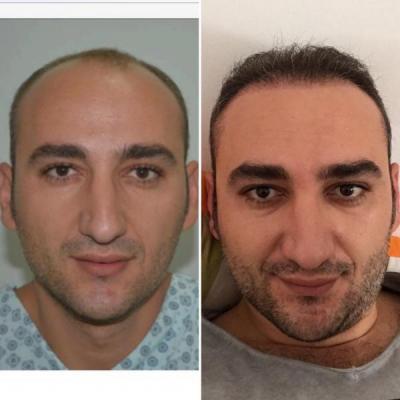hair restoration cost (1)