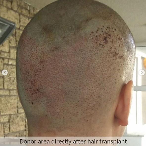 hair transplant ankara (4)