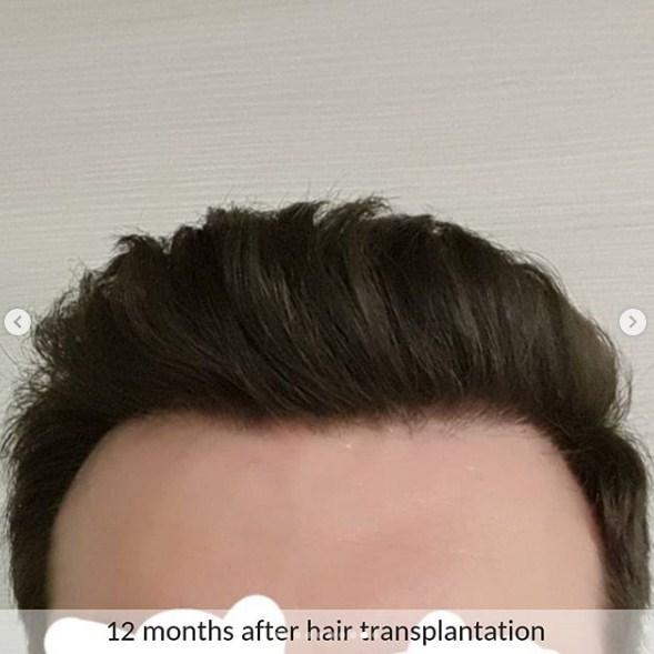 hair transplant ankara (7)
