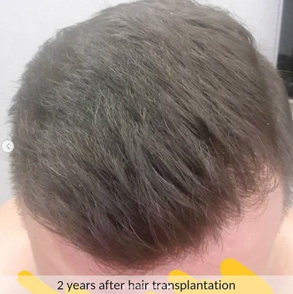 hair transplant ankara (8)