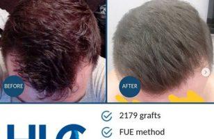 hair-transplant-ankara