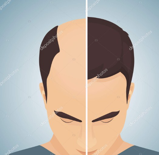 hair transplant before and after (2)