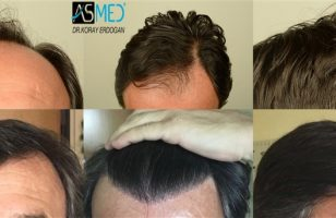 hair-transplant-center-turkey