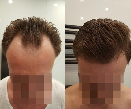 hair transplant clinic in turkey