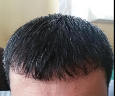 hair transplant in Turkey (1)