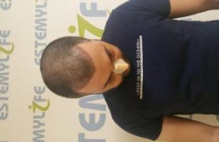 hair-transplant-in-Turkey