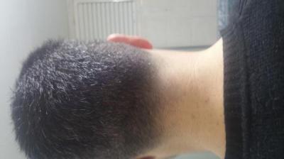 hair transplant in Turkey (5)
