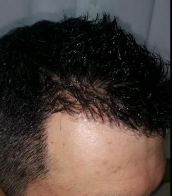 hair transplant in Turkey (6)