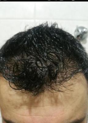 hair transplant in Turkey (7)