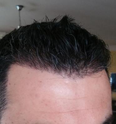 hair transplant in Turkey (8)