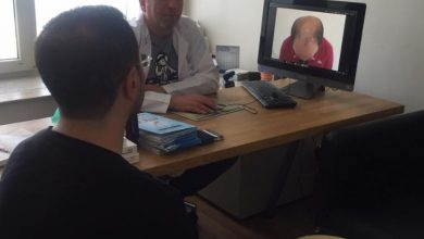 hair-transplant-in-Turkey-by-doctor