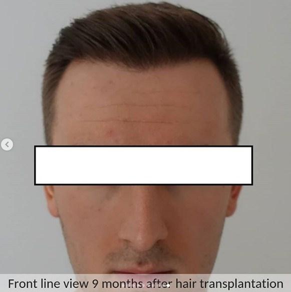 hair transplant in ankara (1)