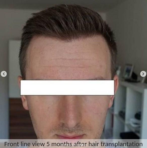 hair transplant in ankara (10)